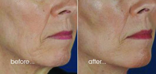 PDO Thread Contouring/Lift - Croydon cosmetic clinic
